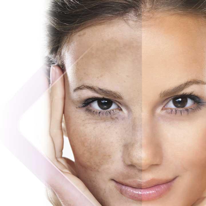 Discromie della pelle: cosa sono e come trattarle
