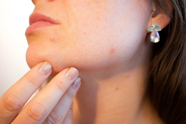 Macchie sul viso: come eliminarle con prodotti di origine naturale
