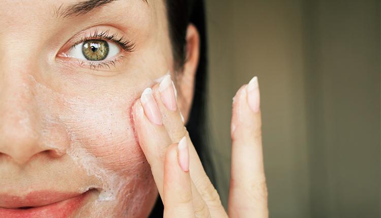 Pelle mista viso: come riconoscerla e quali sono i rimedi