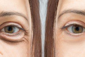 Borse e Occhiaie: Cause, Effetti e Rimedi